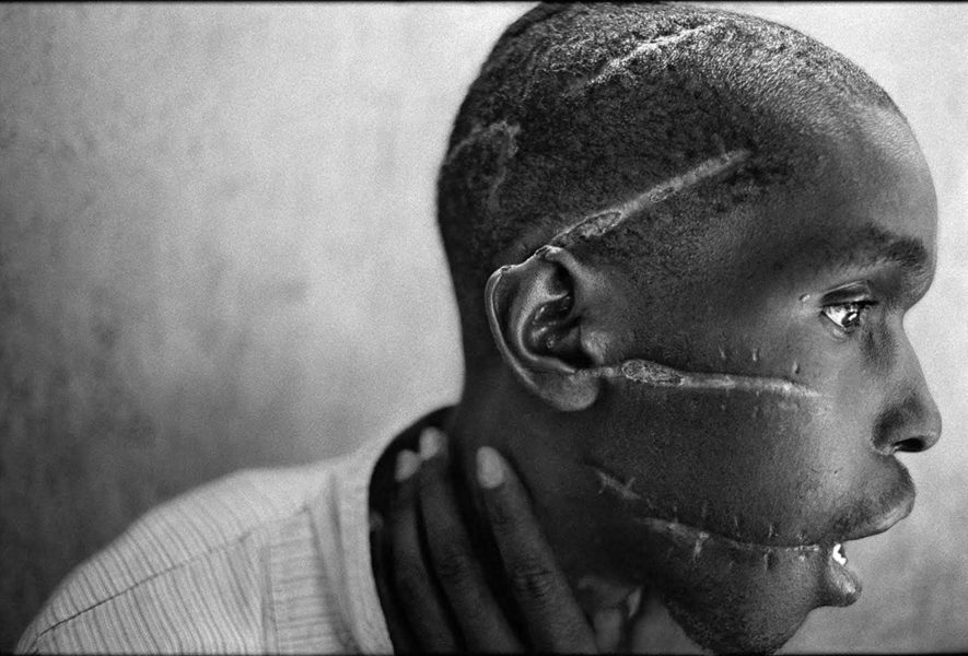 James Nachtwey long scratched on the face of a man in Africa